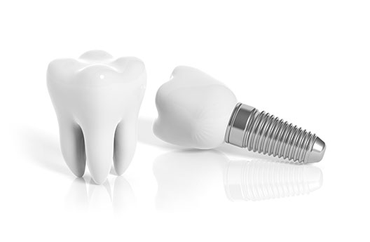 Image Of Dental Implants Used In Cosmetic Dentistry - The Dentist at Framingham